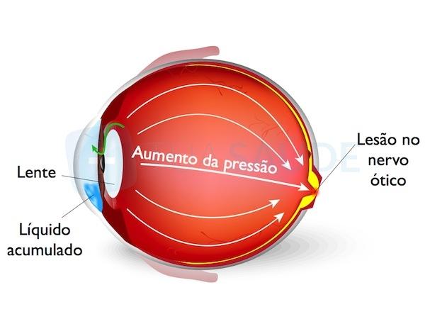 glaucoma olho